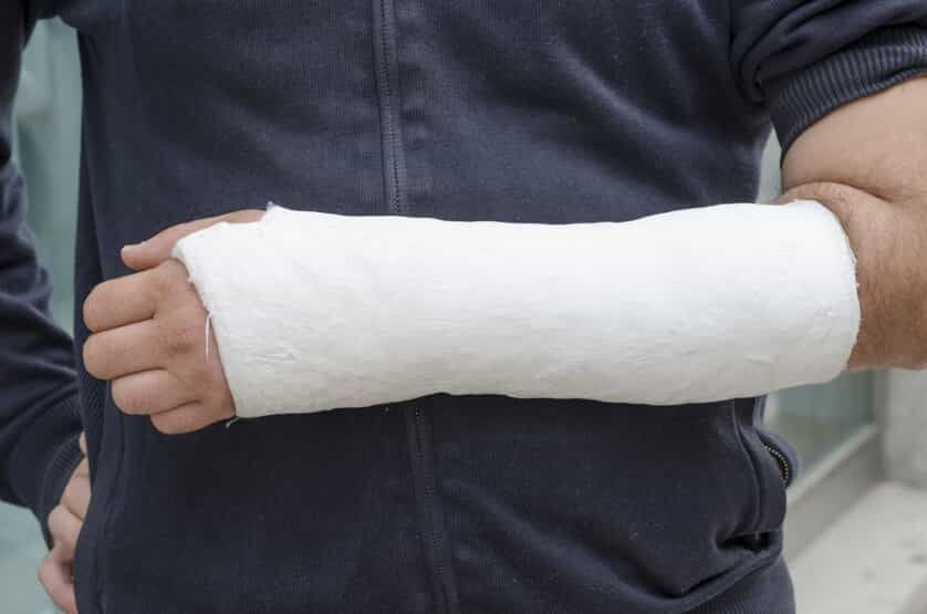 Man in a Left Arm Cast
